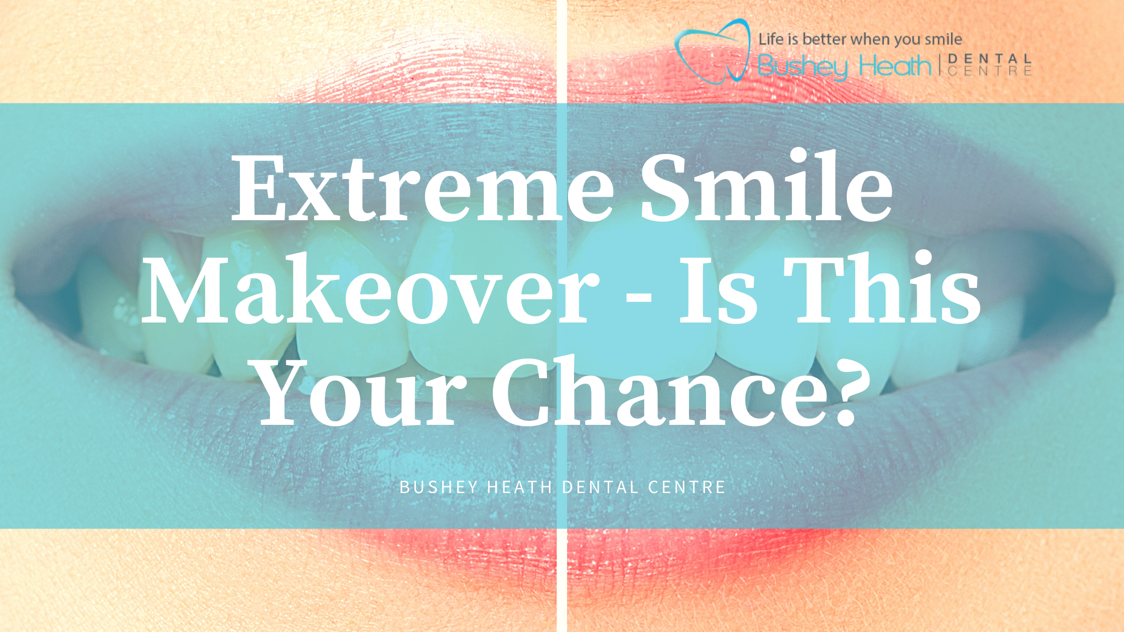 Extreme Smile Makeover - Is This Your Chance?